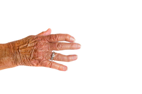 A hand with two silver rings of an elderly woman with Rheumatoid Arthritis disease on a white background.